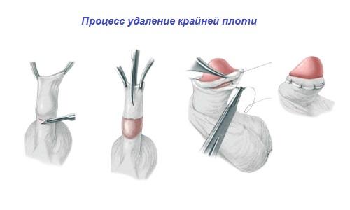 Обрезаный член вид с уздечки
