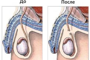 Вазэктомия — операция по стерилизации